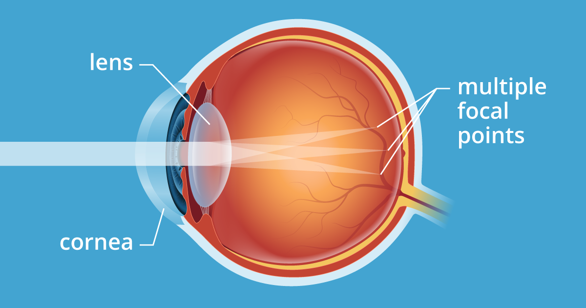 eye doctor q and a about astigmatism - allaboutvision, Skeleton