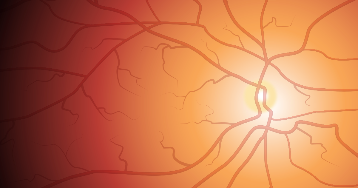 Eye Doctor Q And A Retina Problems