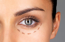 Woman prepped for blepharoplasty surgery.
