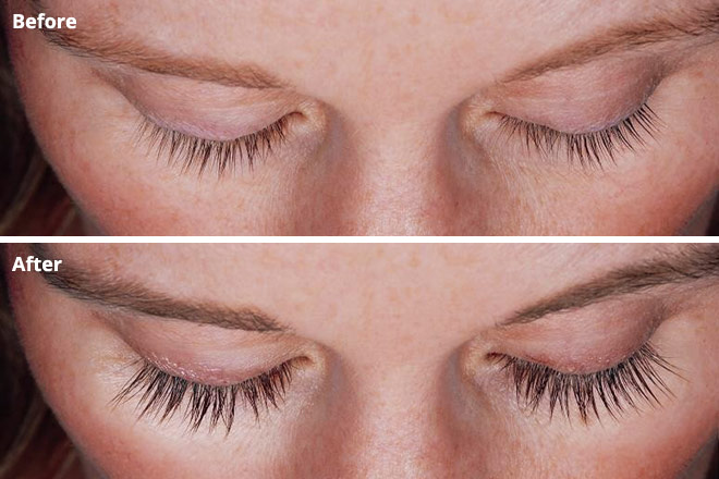 Latisse for Longer Eyelashes: Safe for Your Eyes?