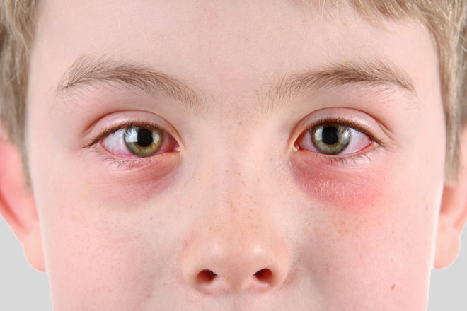 Can A Child Get Pink Eye From A Dog