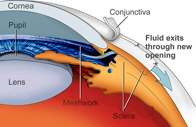 What are the risks of eye surgery for glaucoma?