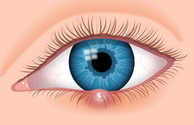 7 eye stye facts: identify and cure your stye (sty), Skeleton