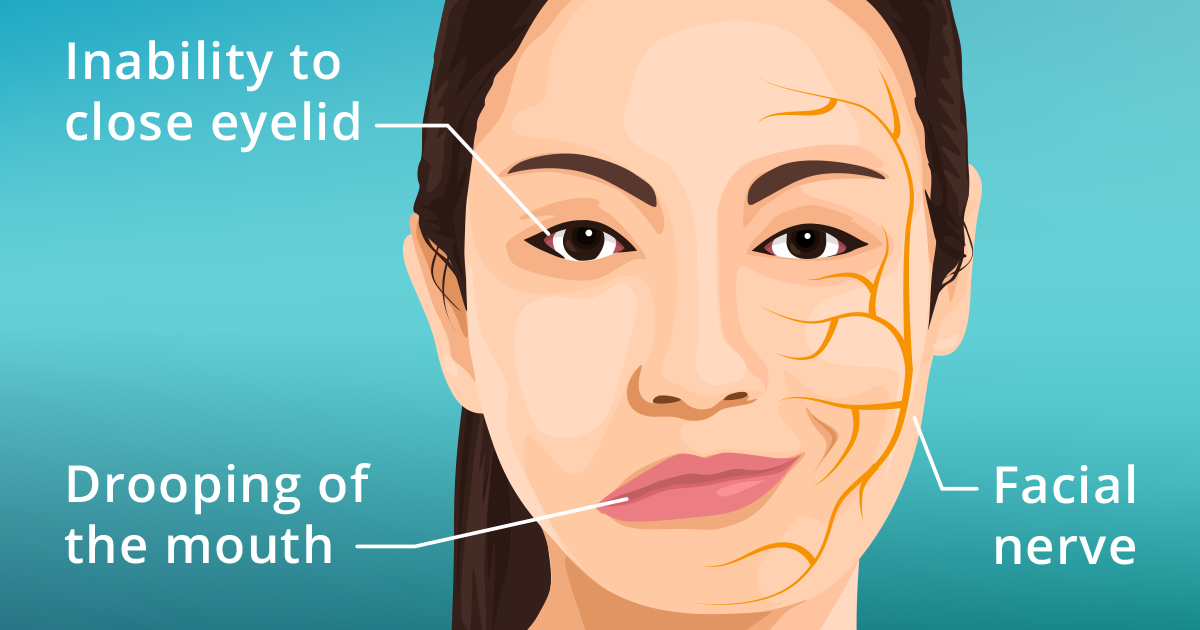 bell's palsy: causes, symptoms and treatments - allaboutvision, Cephalic Vein