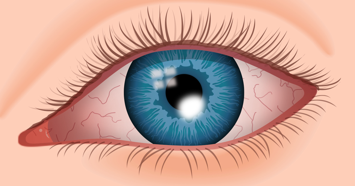 Corneal Ulcer Symptoms, Causes and Treatments - AllAboutVision.com