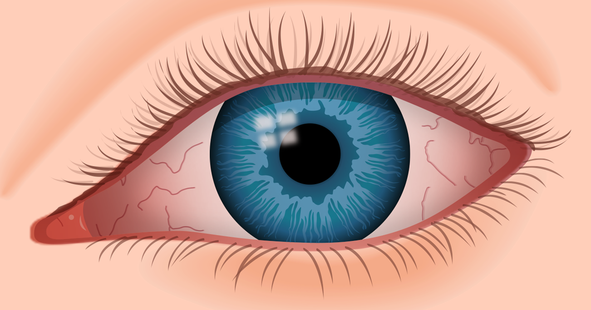 61c6f929d2d Dry eye syndrome  causes