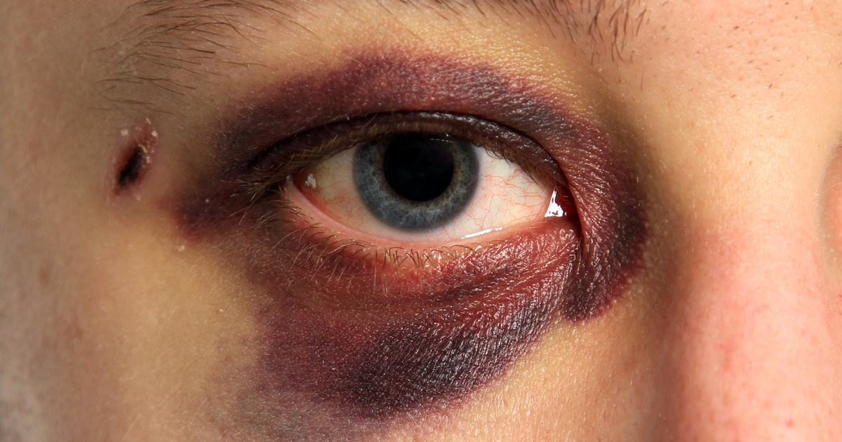 7 most common eye injuries and how to treat them solutioingenieria Image collections