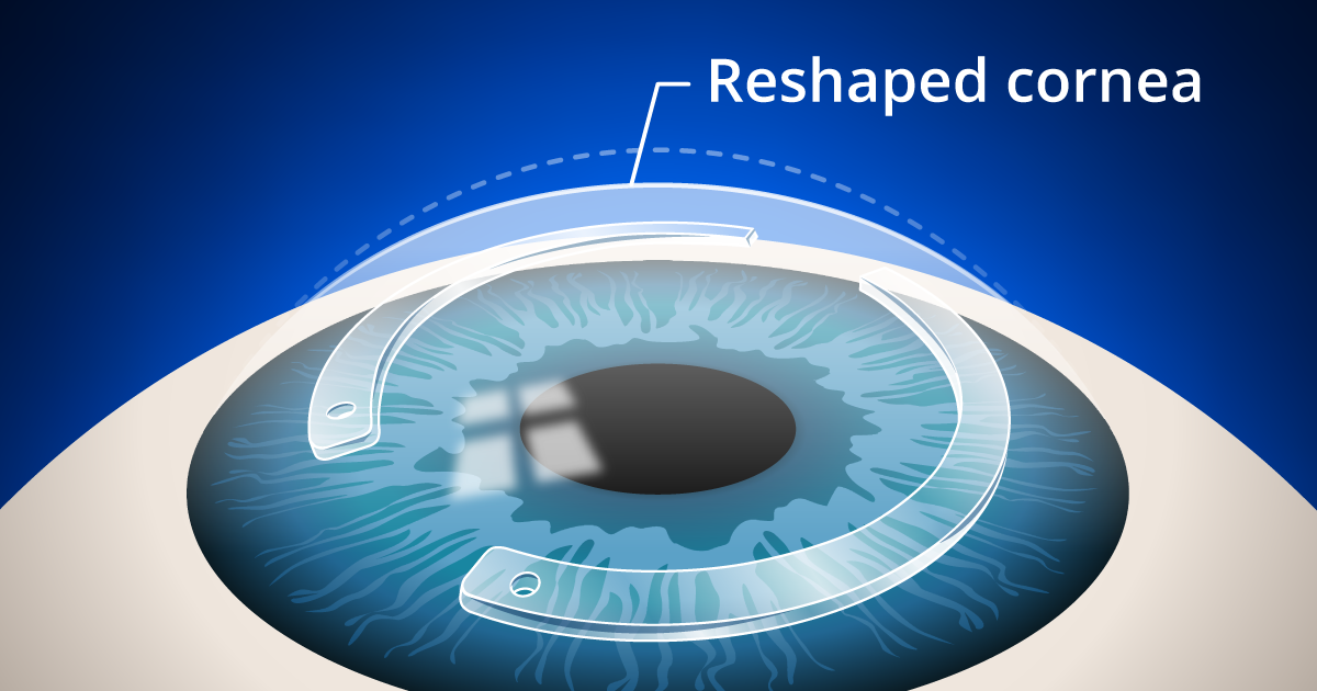 Intacs Corneal Implants Or Inserts Proven Treatment For