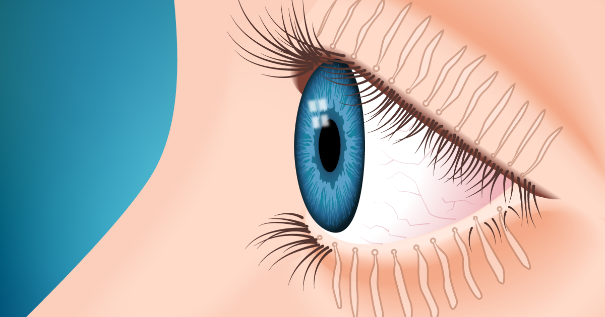 What You Should Know About Meibomian Gland Dysfunction (MGD ...