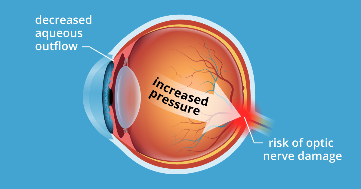 9afa1455e83 Ocular Hypertension  5 Causes of High Eye Pressure