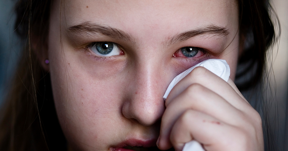 Pink eye: Conjunctivitis symptoms and treatment | All About