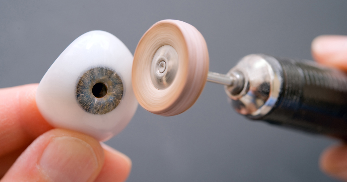Losing An Eye Enucleation And Prosthetic Eye Faq