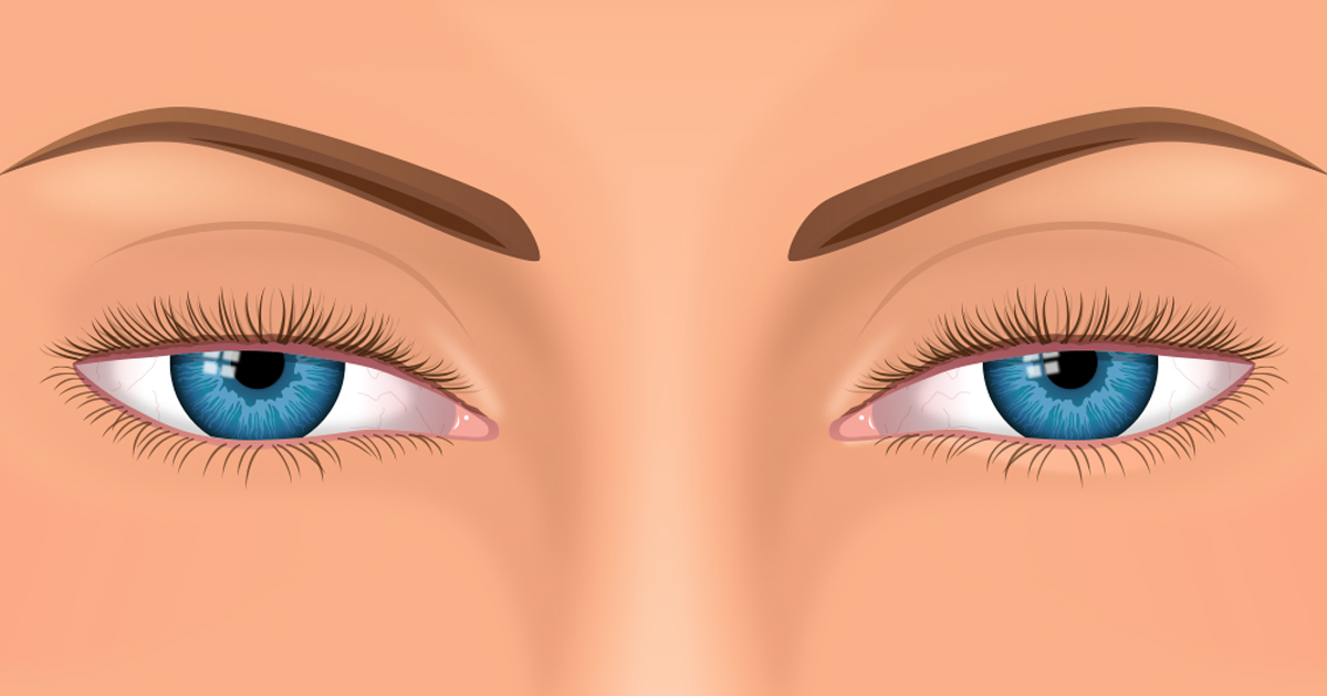 Ptosis (droopy eyelids): Can treatment cause problems?