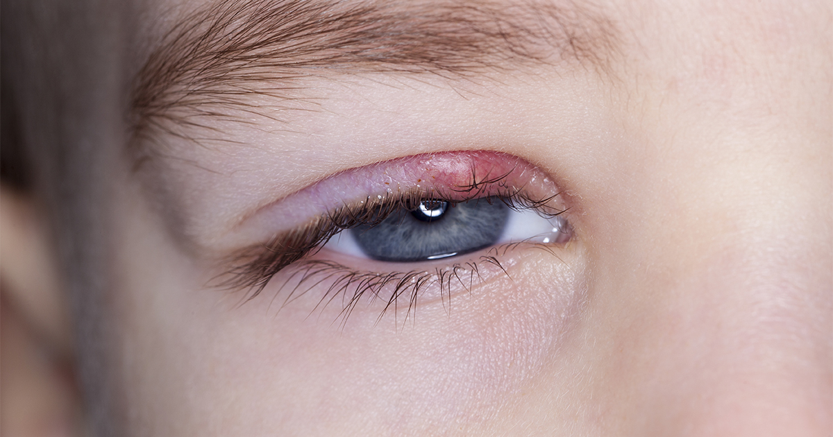 How To Get Rid Of A Stye 2 Easy Treatments