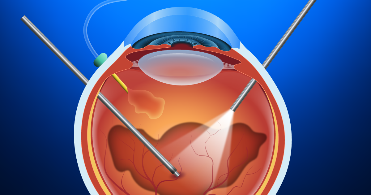 Vitrectomy And Vitreoretinal Procedures Allaboutvision Com