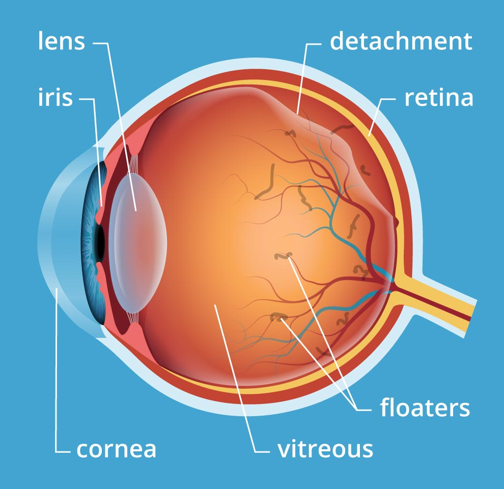 Eye Floaters Laser Treatment Symptoms Causes