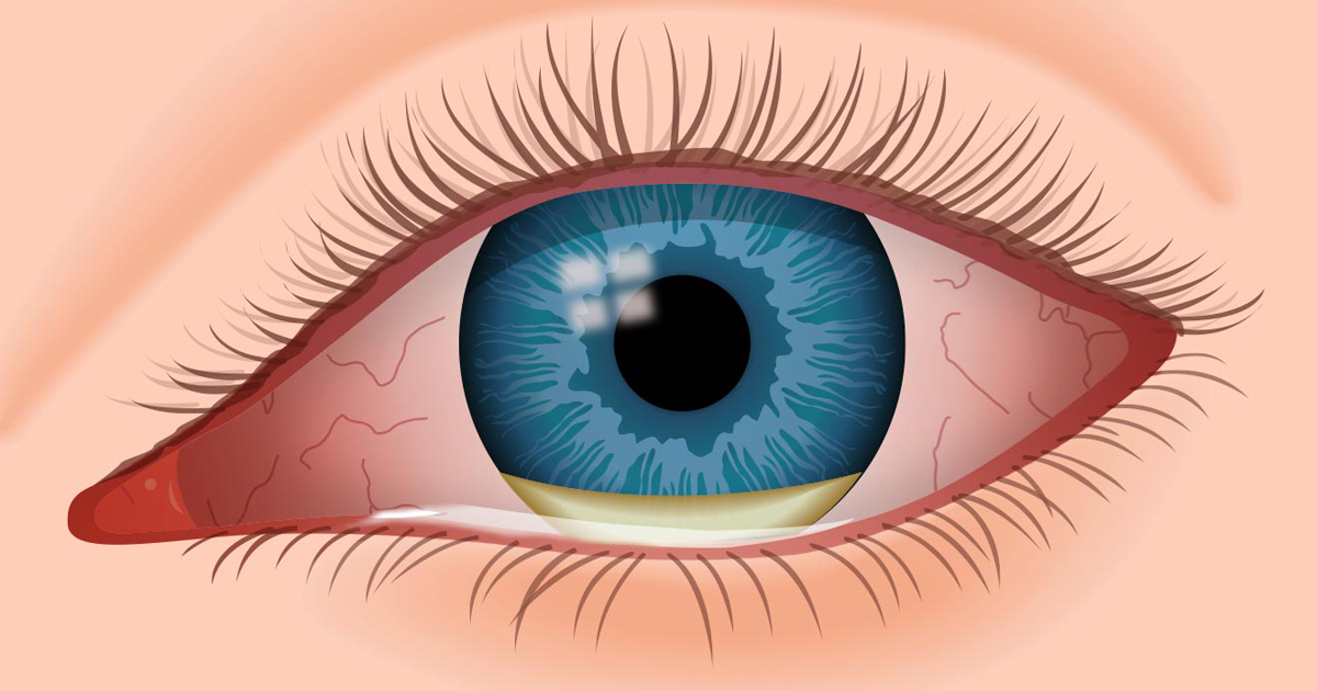 Eye infections: Causes, symptoms and treatment | All About