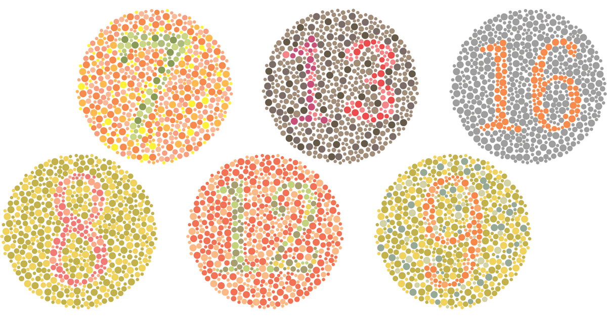 color vision deficiency Color vision deficiency everybody has three color pigments in their retinas in an equal ratio of red, green and blue color defective people have a deficiency of red or green or perhaps both.