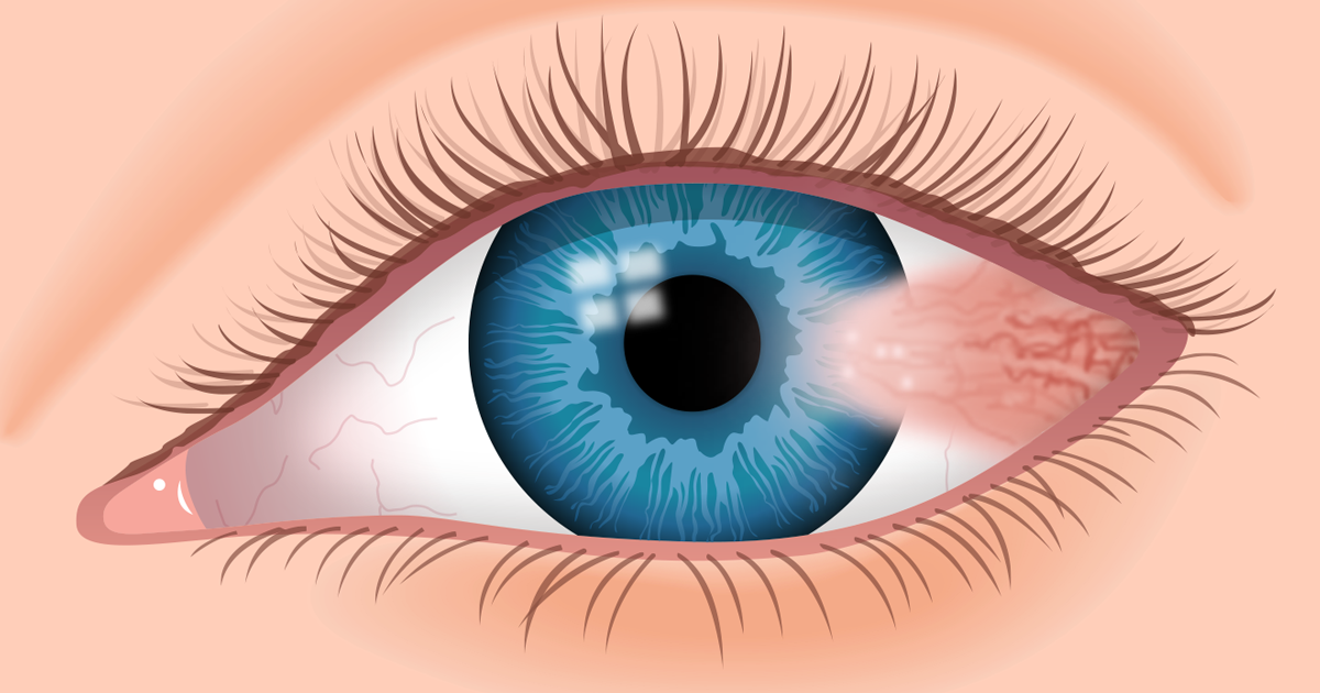 014247675c Pterygium  What Is Surfer s Eye