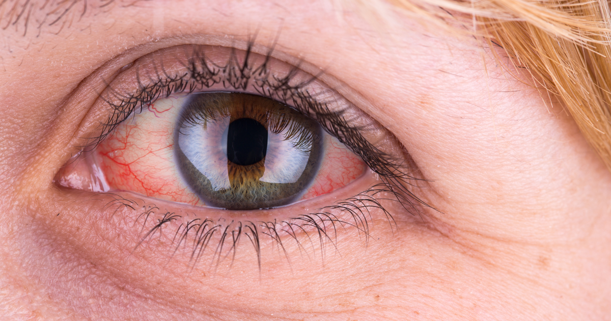 19 Red Eye Causes And How To Treat Red Eyes