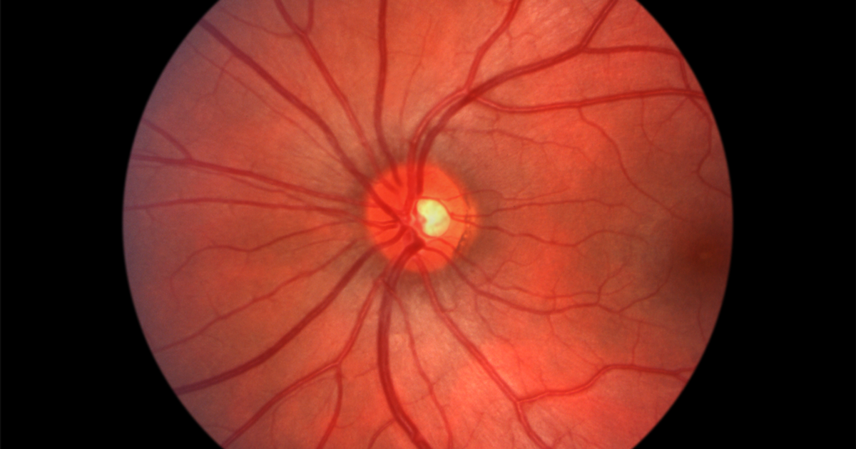 Eye nerves image collections diagram of internal organs optic neuritis and neuropathy symptoms causes treatments ccuart Choice Image