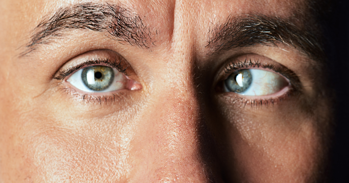 what causes strabismus in adults
