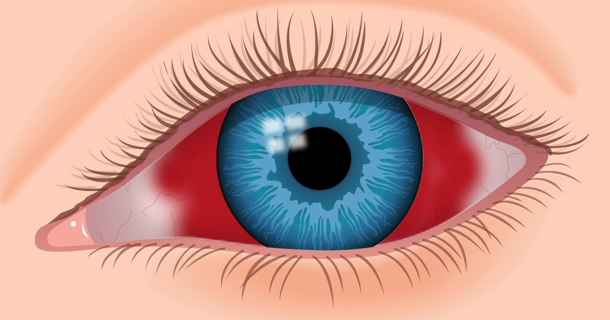 Blood in eye (subconjunctival hemorrhage): Causes and treatment