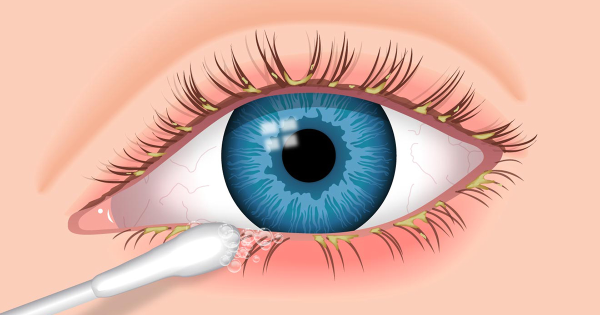 Blepharitis Causes Treatment Of Eyelid Inflammation