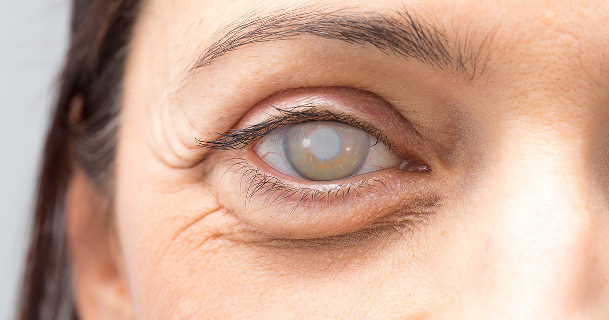Can you wear contacts after cataract surgery