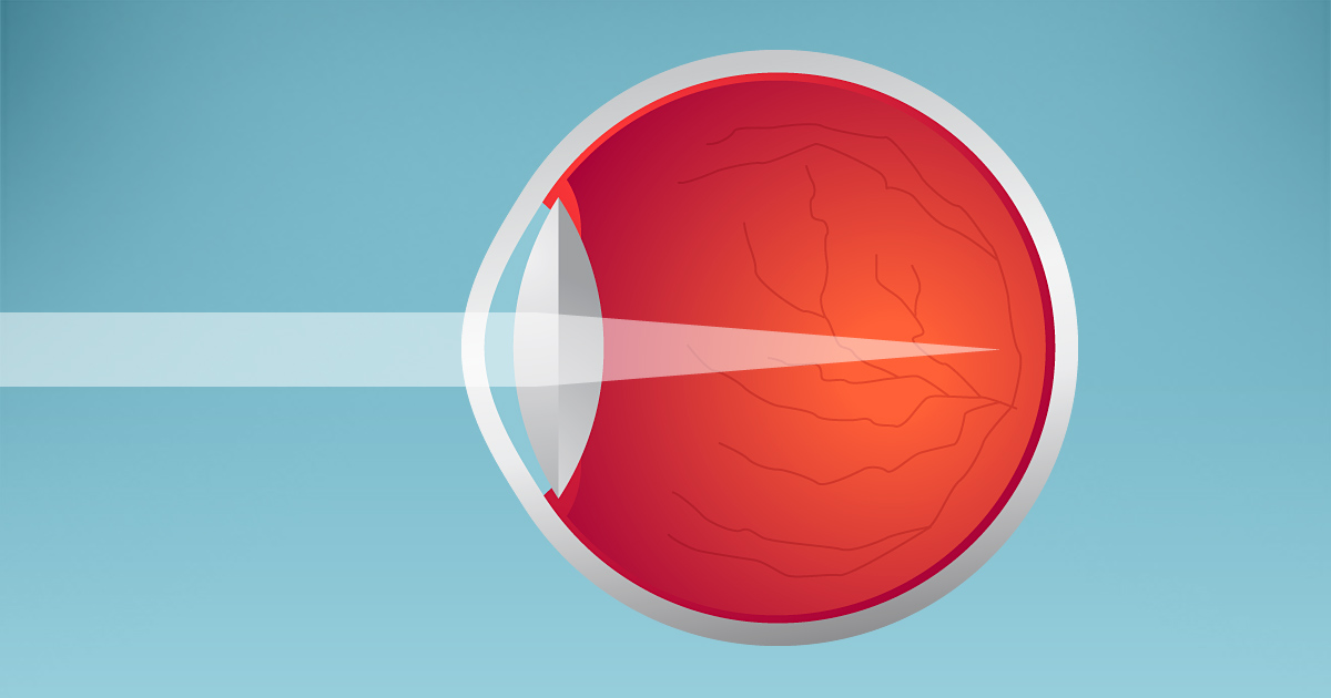 What Causes Nearsightedness