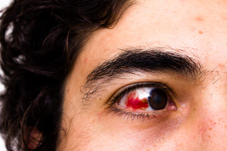 Blood in Eye (Subconjunctival Hemorrhage) - 4 Causes and Treatment