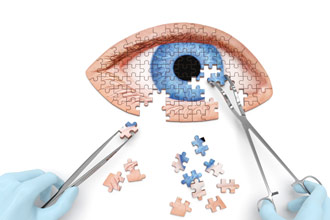 Ask the Eye Doctor About Keratoconus