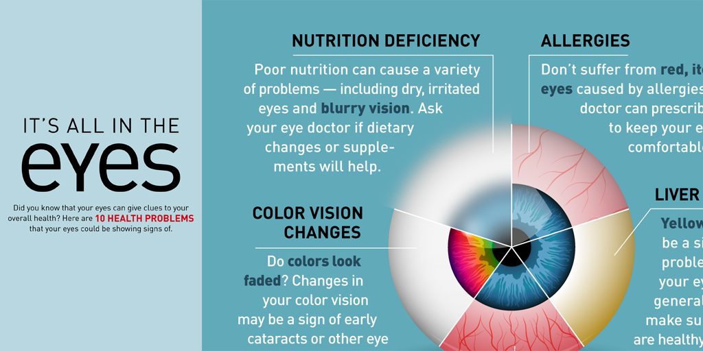 Infographic 10 Health Problems Your Eyes Could Be Showing Signs Of