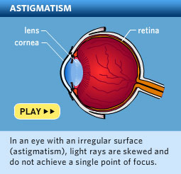 Please click here to watch a video about astigmatism.