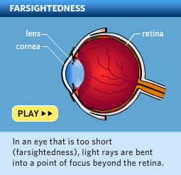 Please click here to watch a video about hyperopia, also called farsightedness.