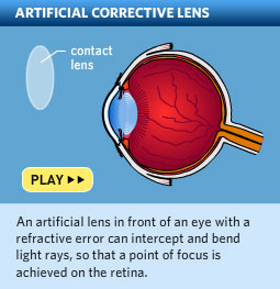 Please click here to watch a video about how lenses correct vision.
