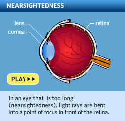 Please click here to watch a video about myopia, also called nearsightedness.