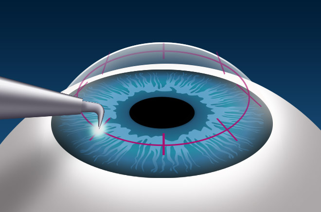 Conductive Keratoplasty Ck Reduces Need For Reading Glasses