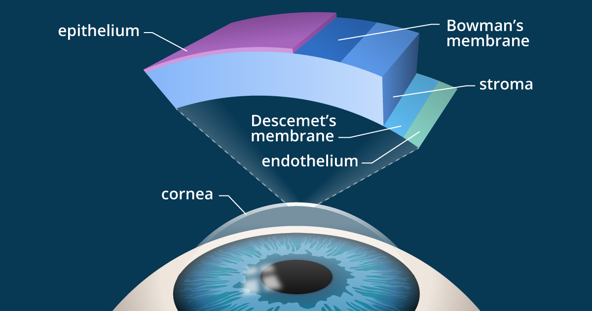 Review Of Kamra Inlay And Corneal Implants For Presbyopia
