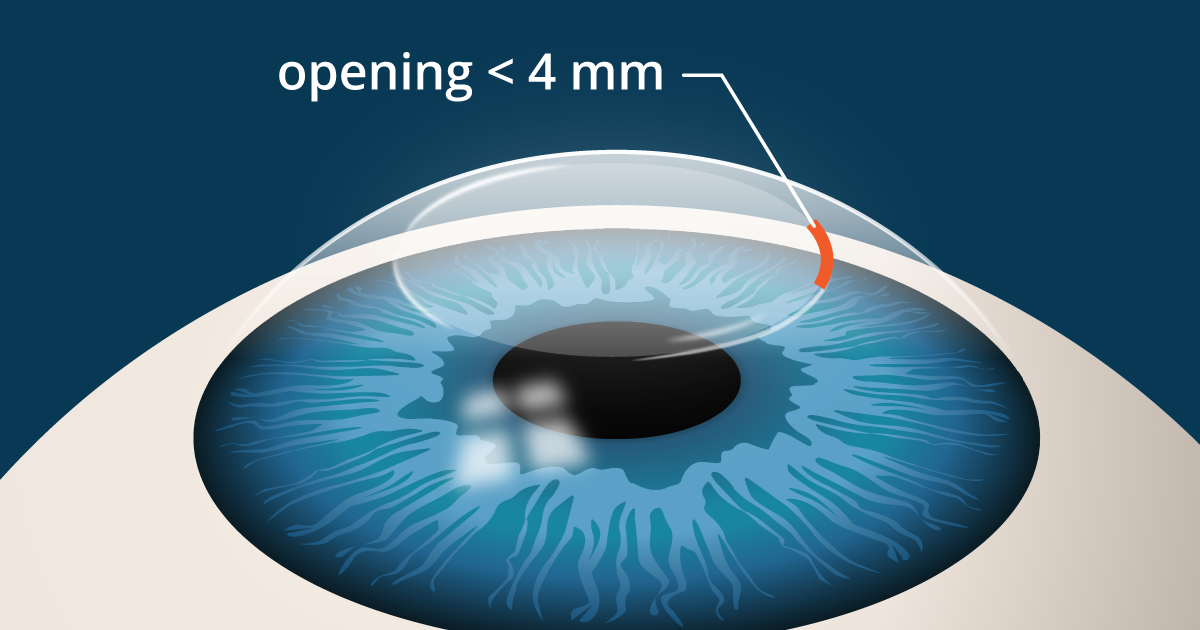 But there's good news! Recent advances in lens manufacturing have made possible new high-definition eyeglass lenses that correct these aberrations, potentially giving you sharper vision than you've ever had before with rahipclr.ga lenses are designed to provide sharper vision in all lighting conditions and reduce glare for nighttime driving and other night vision tasks.